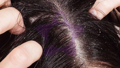 صورة تعرفي على أنواع وأعراض قشرة الشعر وكيفية التخلص منها..